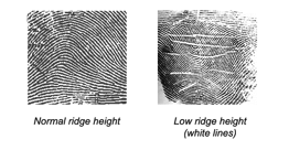 Normal and low ridge height